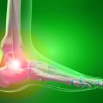 Ankle pain, Sprain, Flatfeet, Plantar Fasciitis, Heel Pain, Fracture