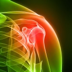 Shoulder Pain, Frozen shoulder, Rotator cuff strain, Dislocations, Shoulder Arthritis