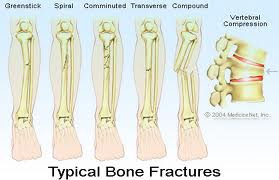 Physiotherapy after Fracture Bone