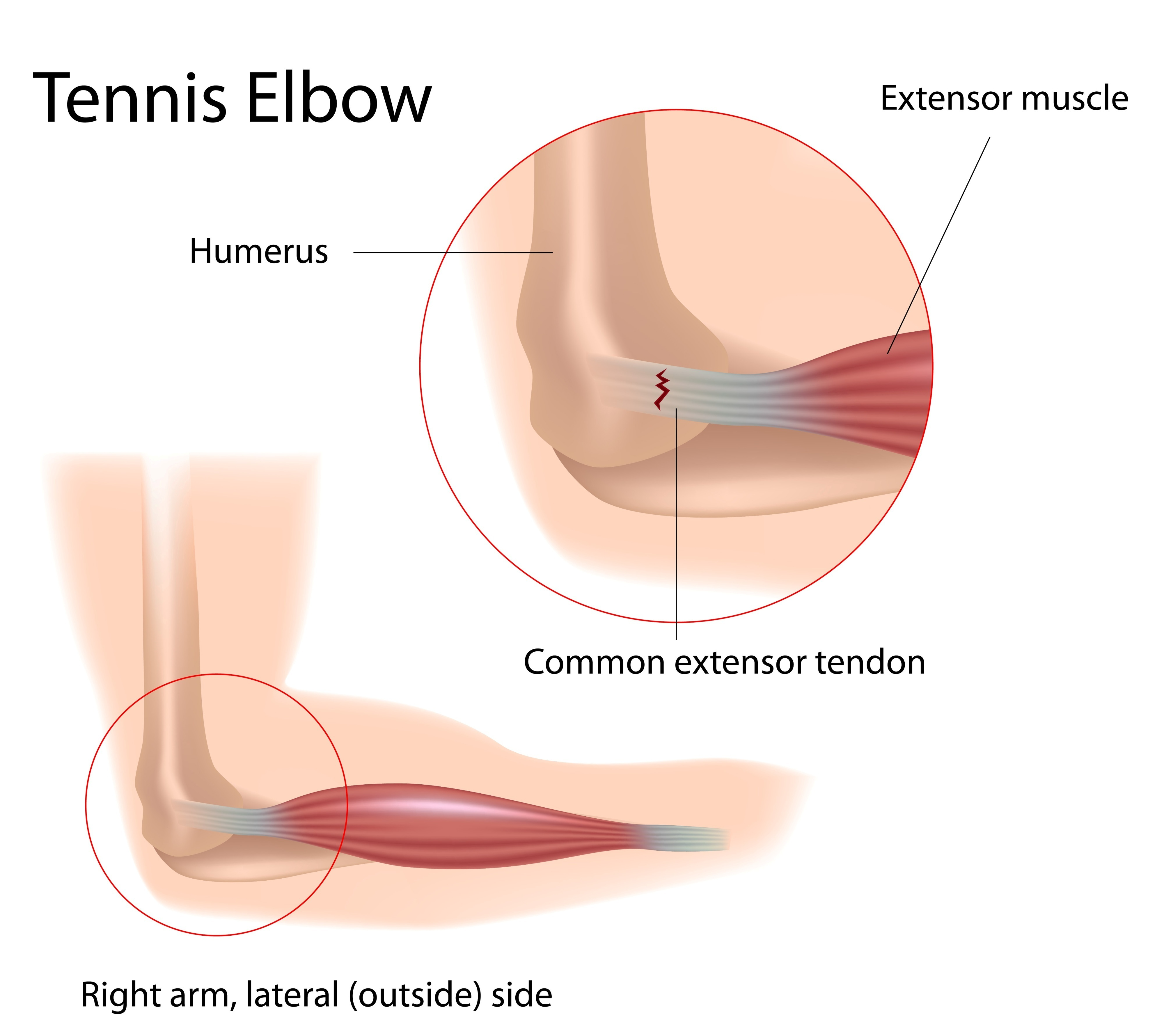 Tennis Elbow on muscle pain location diagram