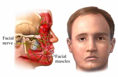 Physiotherapy for Facial Palsy