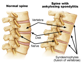 Physiotherapy for ankylosing spondylitis