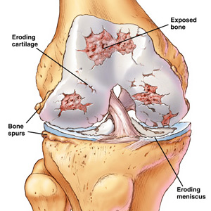 Physiotherapy treatment for knee osteoarthritis