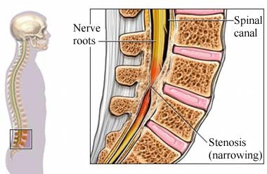 Physiotherapy for Spinal Stenosis