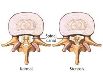 Physiotherapy for Cervical Stenosis