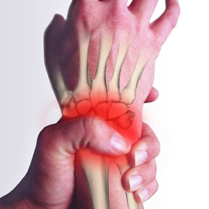 Stop Wrist Pain with Physiotherapy