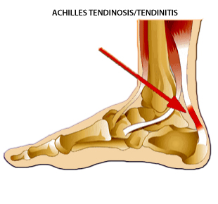 Archilles Tendinitis and Physiotherapy