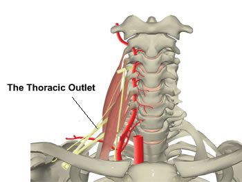 Physiotherapy for Thoracic Outlet Syndrome