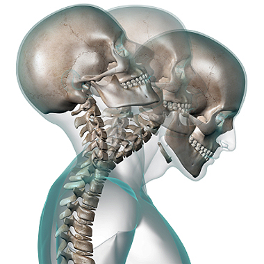 Physiotherapy for Whiplash Injury