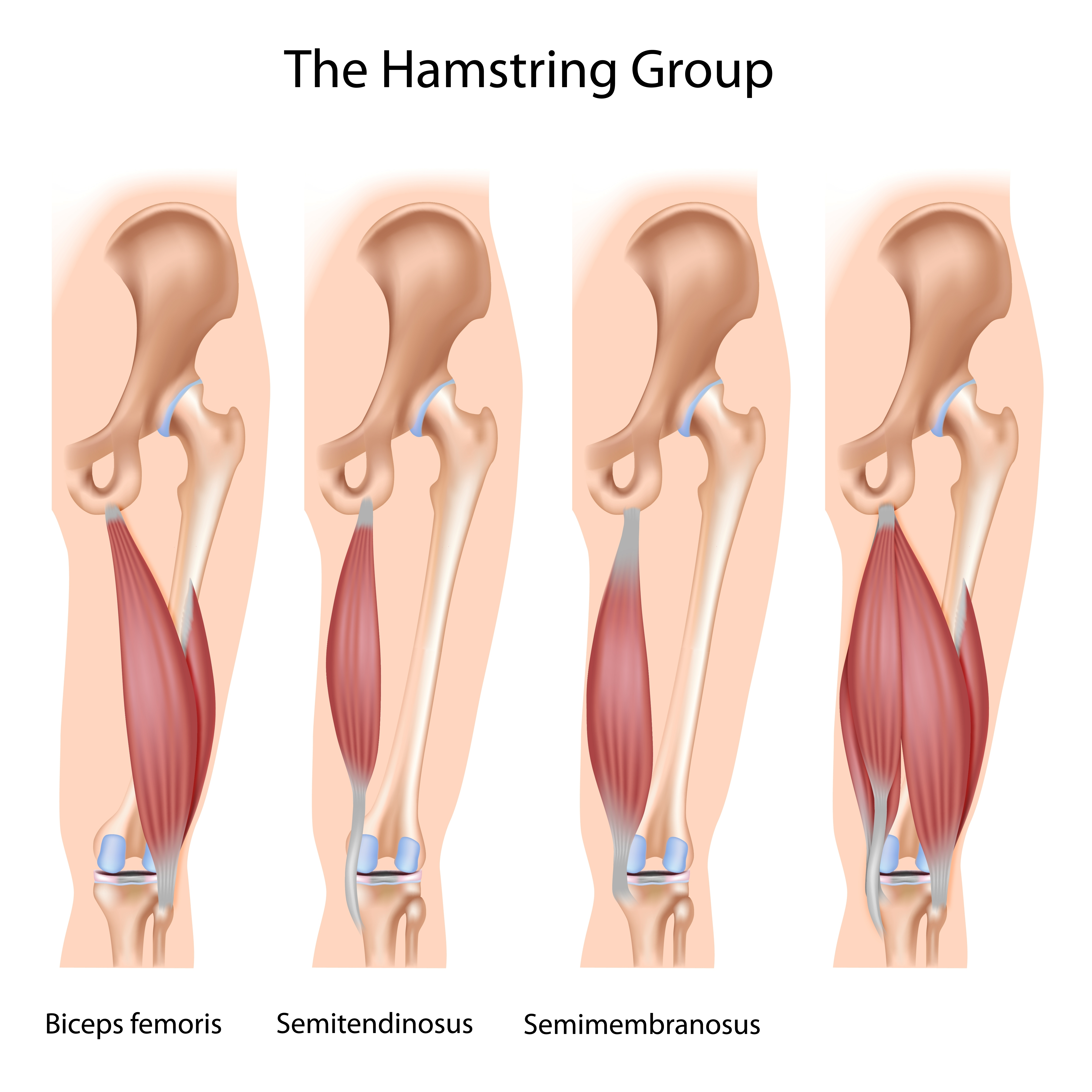 Hamstring Strain Singapore Physiotherapists Provide Physiotherapy